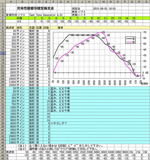 PureToneAudiometry-Sheet-2.jpg